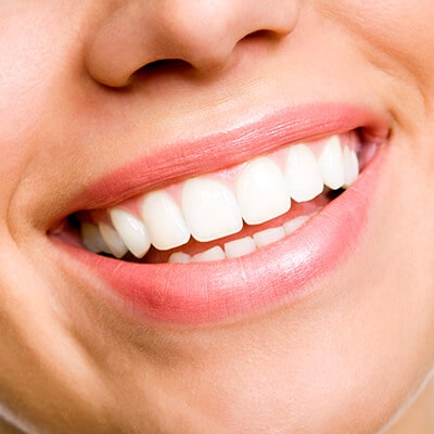 A close up of a woman's smile after she has received one of our dental services