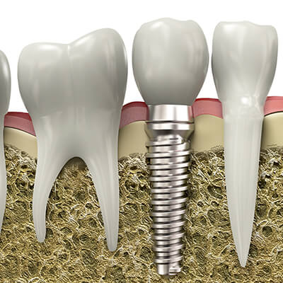 A graphic showing a traditional titanium implant